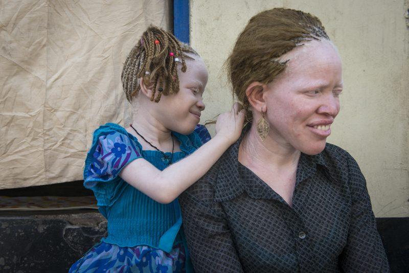 albinisma tanzania liliane fonds